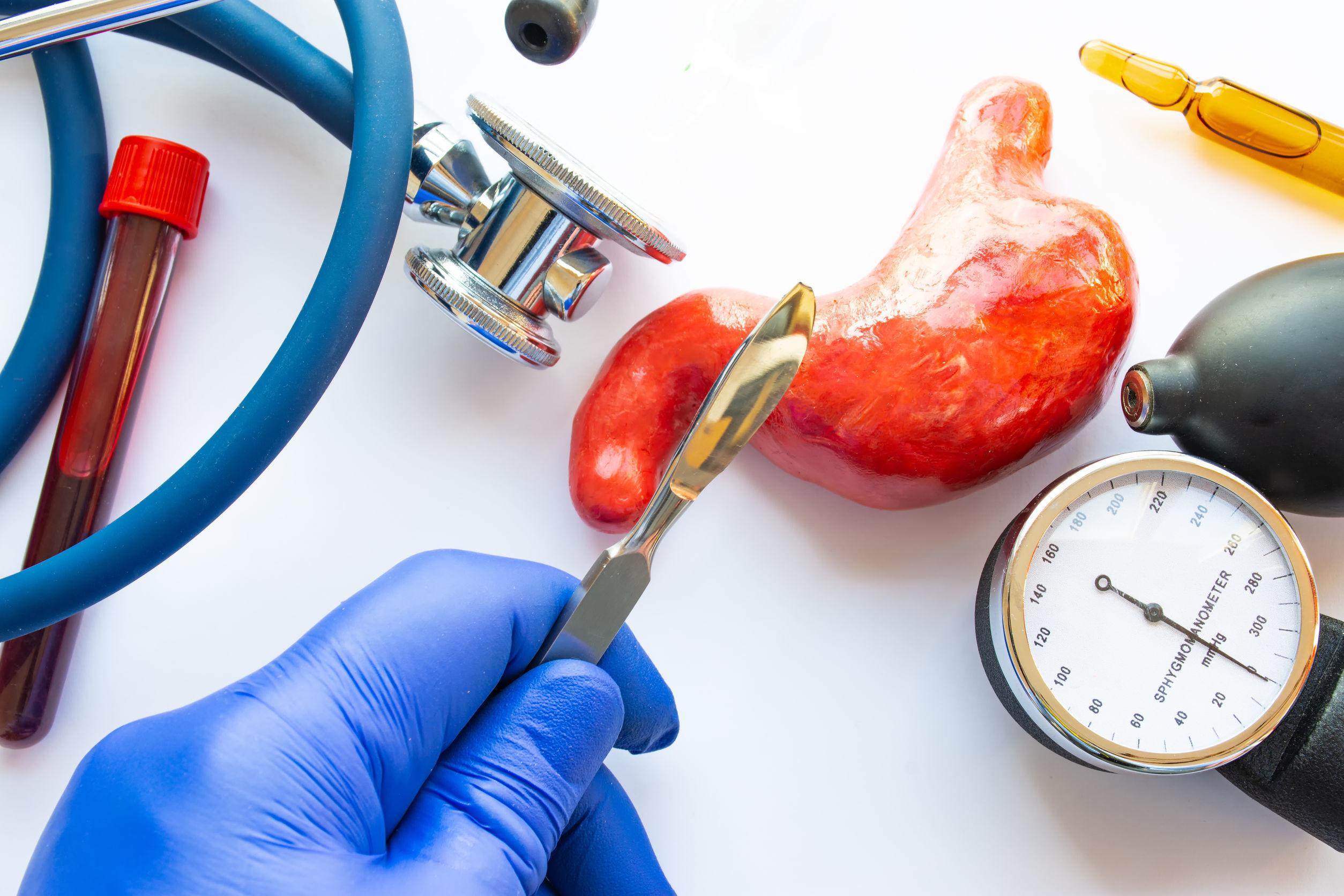 De Gastric Bypass: een operatieve methode voor snel en langdurig gewichtsverlies door middel van een maagverkleining en -omleiding